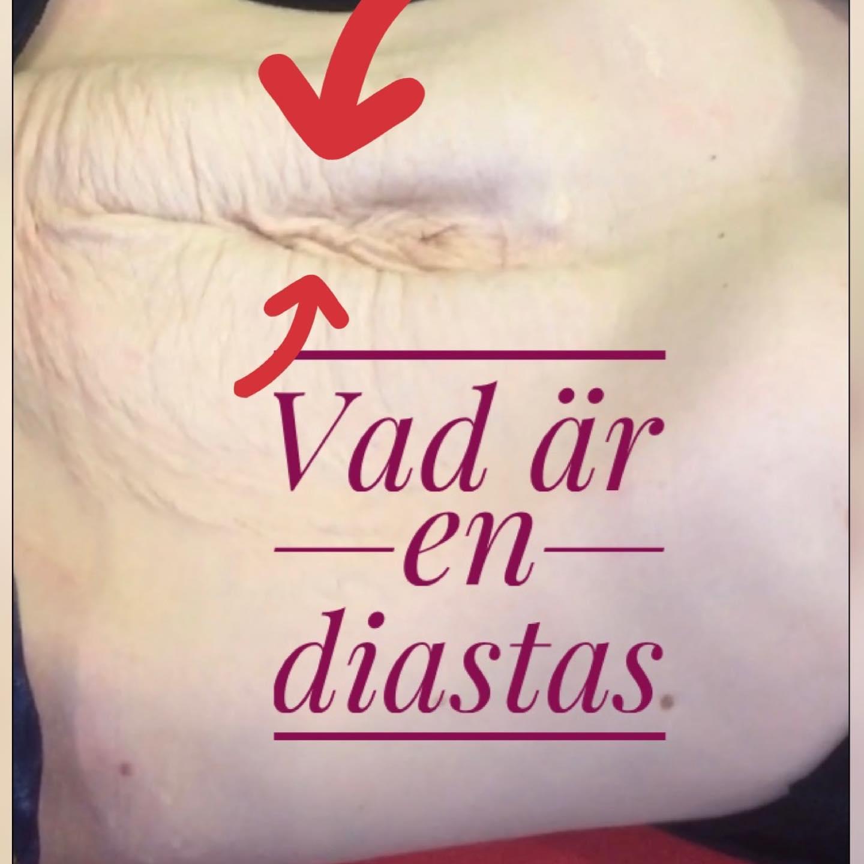Frågor och svar om diastas